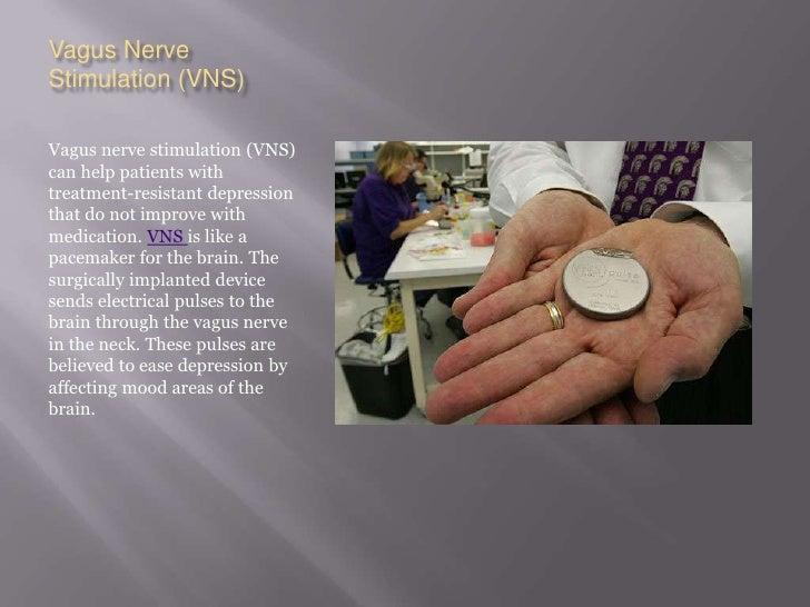 Vagus Nerve Stimulation (VNS)<br />Vagus nerve stimulation (VNS) can help patients with treatment-resistant depression tha...