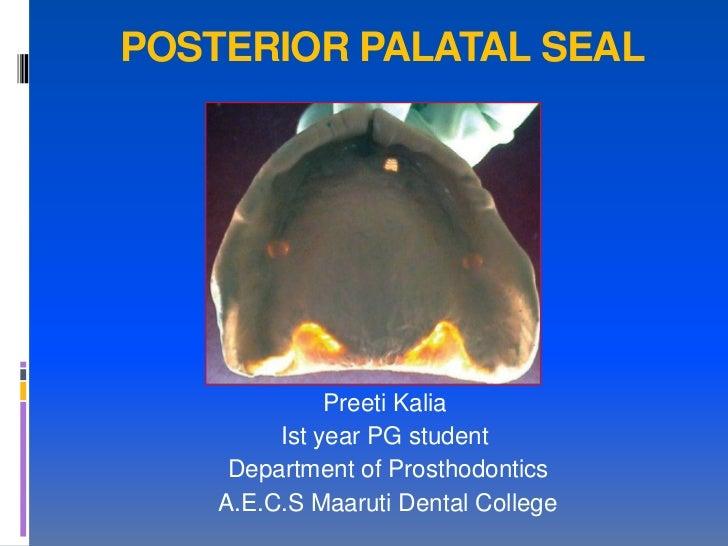POSTERIOR PALATAL SEAL              Preeti Kalia         Ist year PG student     Department of Prosthodontics    A.E.C.S M...