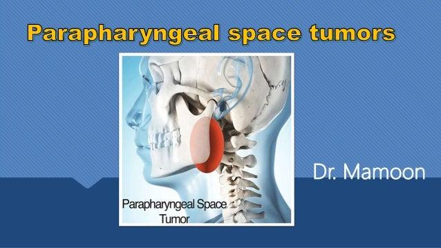 parapharyngeal space tumors
