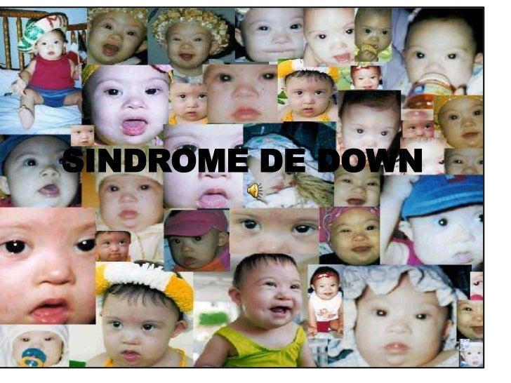 SINDROME DE DOWN<br />