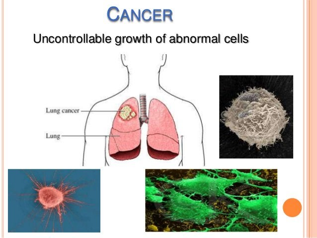 RISK FACTORS FOR CANCER Tobacco  use Sexually Transmitted Diseases Dietary Factors Radiation Asbestos