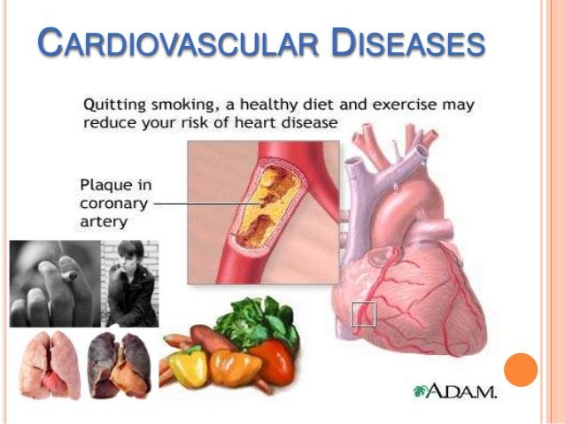 CARDIOVASCULAR DISEASES Your  heart and blood vessels make up your cardiovascular system. The diseases that result from ...
