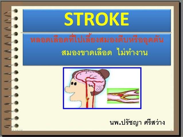 STROKE หลอดเลือดที่ไปเลี้ยงสมองตีบหรืออุดตัน สมองขาดเลือด ไม่ทางาน นพ.ปรัชญา ศรีสว่าง 21-Jul-14 1
