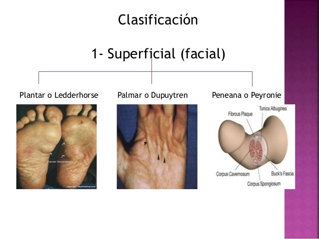 fibromatosis peneana