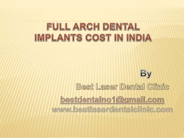FULL ARCH DENTAL IMPLANTS COST IN INDIA