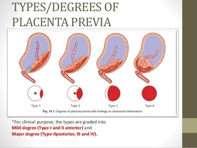 8 How To Cope Up With Placenta Previa