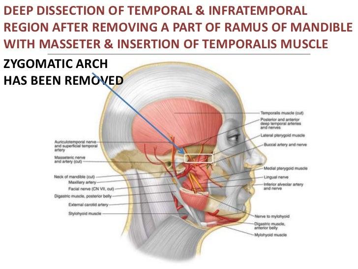 Pptfra Temporal Fossa