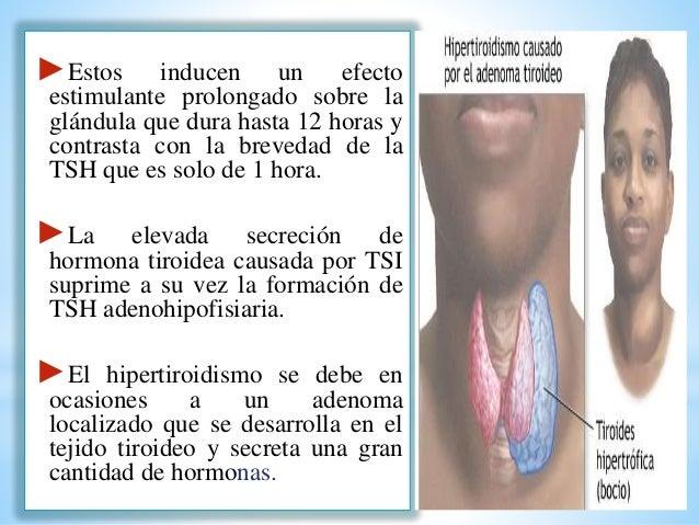 Fisiologia de la Glandula Tiroides , hipertiroidismo e hipotiroidismo.