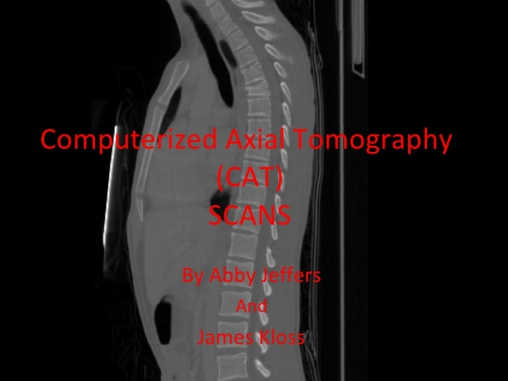 Computerized Axial   Tomography   (CAT) SCANS   By Abby Jeffers  And  James Kloss
