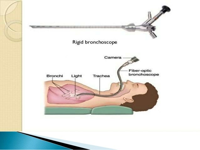  BRONCHOSCOPY is usually performed in an endoscopy room, but may also be performed at the bedside.  The patient is place...