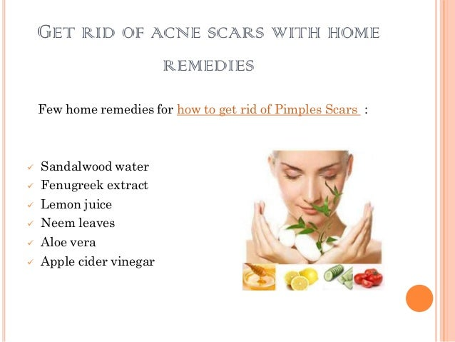 www how to get rid of pimples