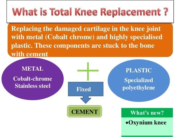 Research Paper: Osteoarthritis