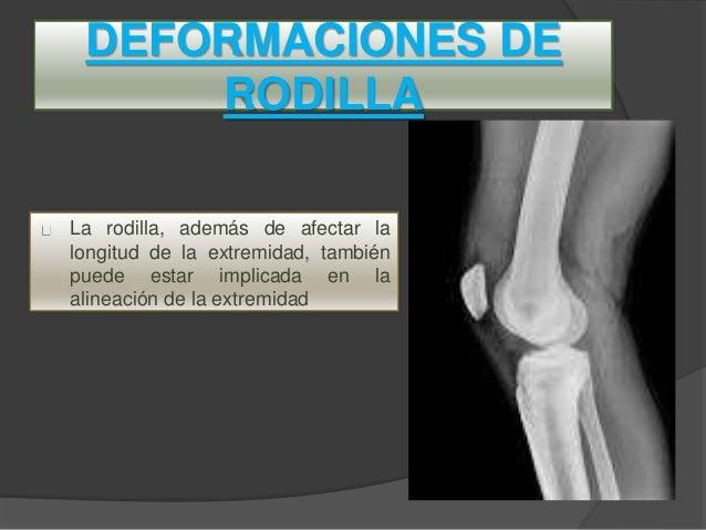 deformidades de rodilla