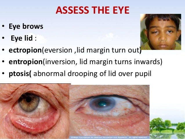 Ppt for physical examination