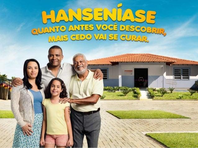 Hanseníase no Brasil  A hanseníase é uma doença endêmica no Brasil, em decréscimo contínuo desde 2003  Existem variações...
