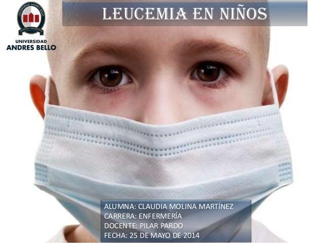 LEUCEMIA en niños ALUMNA: CLAUDIA MOLINA MARTÍNEZ CARRERA: ENFERMERÍA DOCENTE: PILAR PARDO FECHA: 25 DE MAYO DE 2014