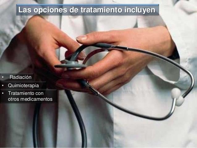Las opciones de tratamiento incluyen • Quimioterapia • Tratamiento con otros medicamentos • Radiación