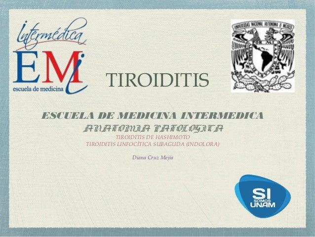 TIROIDITIS ESCUELA DE MEDICINA INTERMEDICA ANATOMIA PATOLOGICA TIROIDITIS DE HASHIMOTO TIROIDITIS LINFOCÍTICA SUBAGUDA (IN...