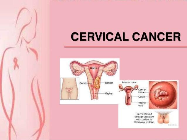 Informasi Kanker Serviks PPT