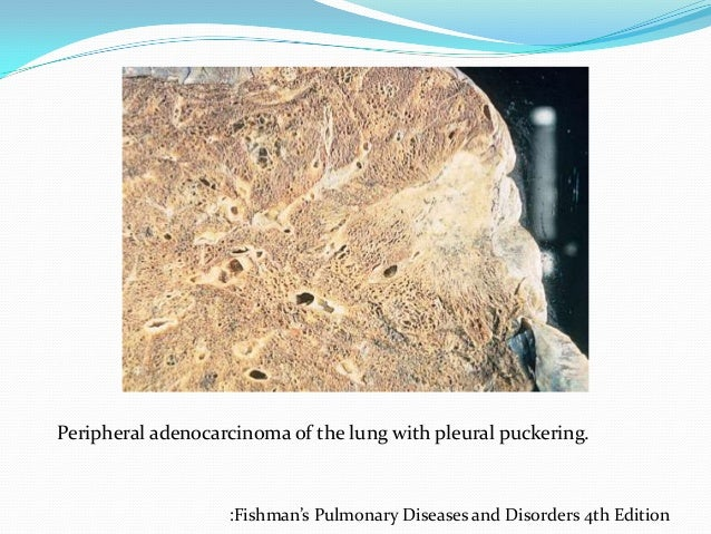 Ppt Lung Carcinoma Part1