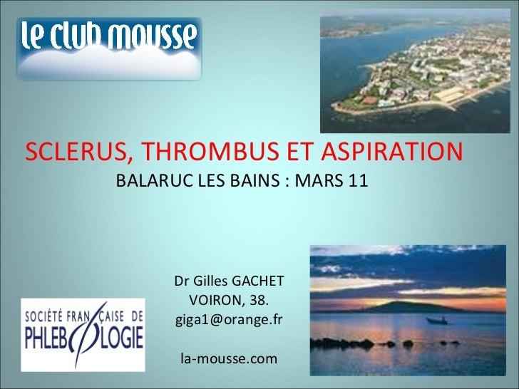 SCLERUS, THROMBUS ET ASPIRATION BALARUC LES BAINS : MARS 11  Dr Gilles GACHET VOIRON, 38. [email_address] la-mousse.com