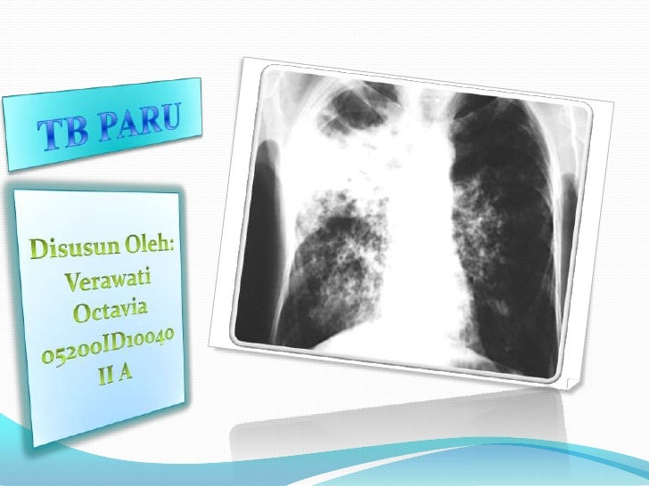 PENGERTIAN Tuberkulosis   (TBC)     adalah       penyakit    akibat   kuman  Mycobakterium tuberkculosis sistemis sehingg...