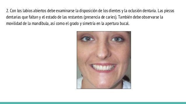 2. Con los labios abiertos debe examinarse la disposición de los dientes y la oclusión dentaria. Las piezas dentarias que ...