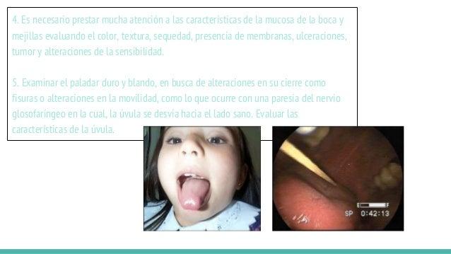 4. Es necesario prestar mucha atención a las características de la mucosa de la boca y mejillas evaluando el color, textur...