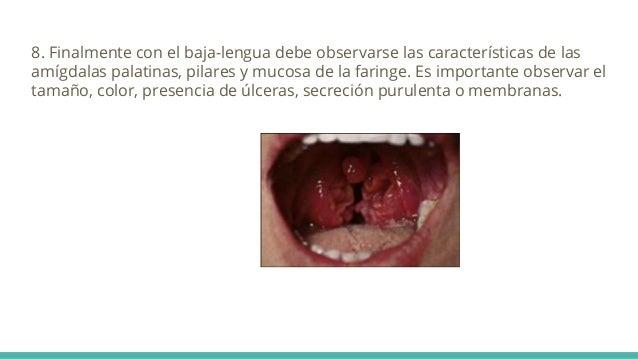 8. Finalmente con el baja-lengua debe observarse las características de las amígdalas palatinas, pilares y mucosa de la fa...