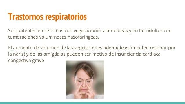 Trastornos respiratorios Son patentes en los niños con vegetaciones adenoideas y en los adultos con tumoraciones voluminos...
