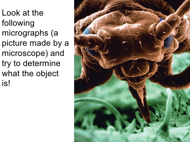 the function of the scanning electron microscope biology essay Essay writing guide  electron microscopy  the transmission microscope and the scanning microscope the electron microscope cannot be used to look at living cells.