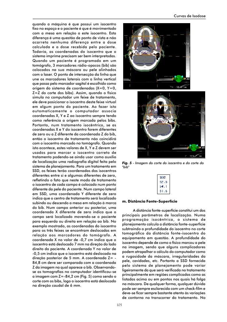 Curvas de Isodose  quando a máquina é que possui um isocentro fixo no espaço e o paciente é que é movimentado com a mesa e...