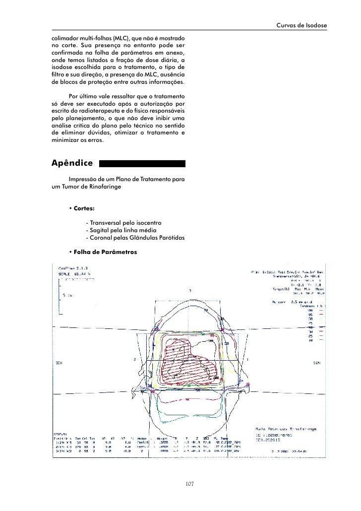Curvas de Isodose  colimador multi-folhas (MLC), que não é mostrado no corte. Sua presença no entanto pode ser confirmada ...