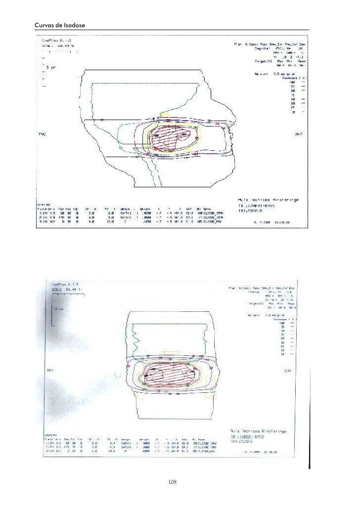 Curvas de Isodose                         108