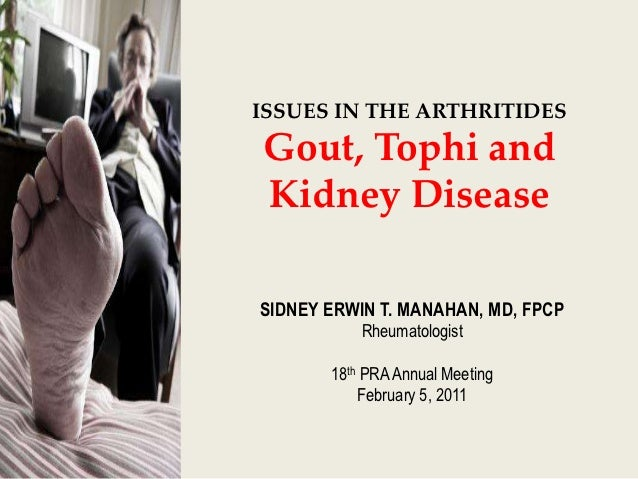 ISSUES IN THE ARTHRITIDESGout, Tophi andKidney DiseaseSIDNEY ERWIN T. MANAHAN, MD, FPCP           Rheumatologist       18t...