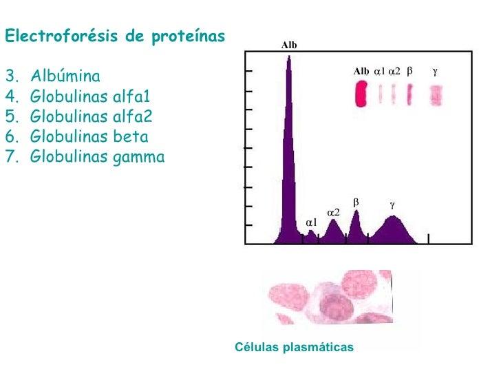 <ul><li>Electroforésis de proteínas </li></ul><ul><li>Albúmina </li></ul><ul><li>Globulinas alfa1 </li></ul><ul><li>Globul...