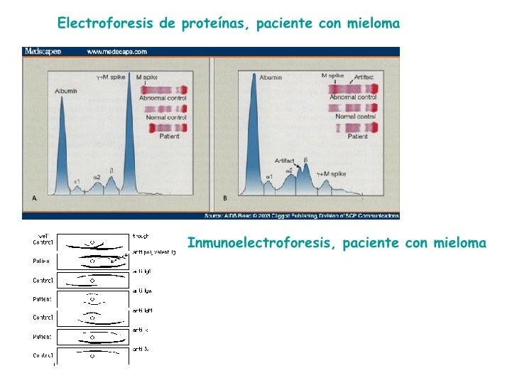 Electroforesis de proteínas, paciente con mieloma Inmunoelectroforesis, paciente con mieloma