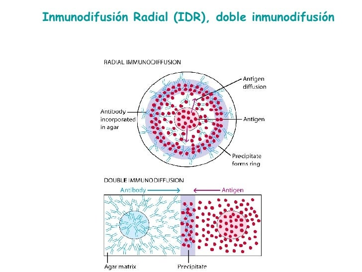 Inmunodifusión Radial (IDR), doble inmunodifusión