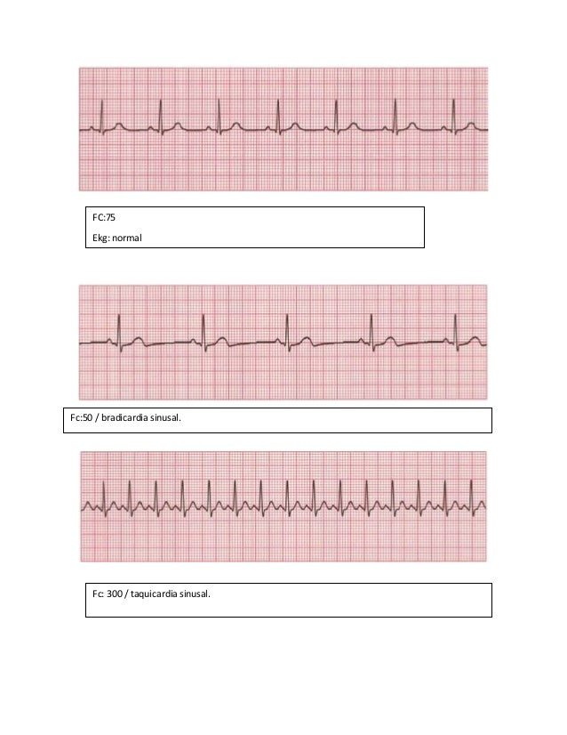 FC:75 Ekg: normal Fc:50 / bradicardia sinusal. Fc: 300 / taquicardia sinusal.