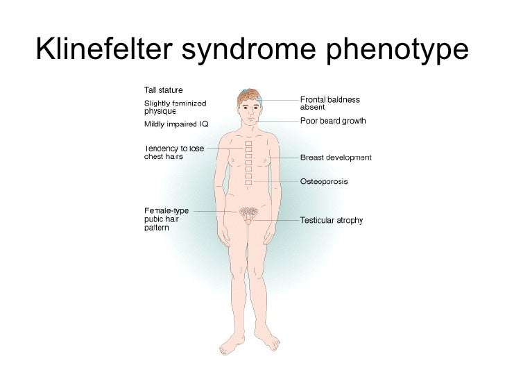 what is klinefelter syndrome Klinefelter syndrome occurs in 1/500-1000 live births and is the most common chromosomal cause of male infertility variants of klinefelter syndrome can include three or more copies of the x chromosome and are typically more severe.