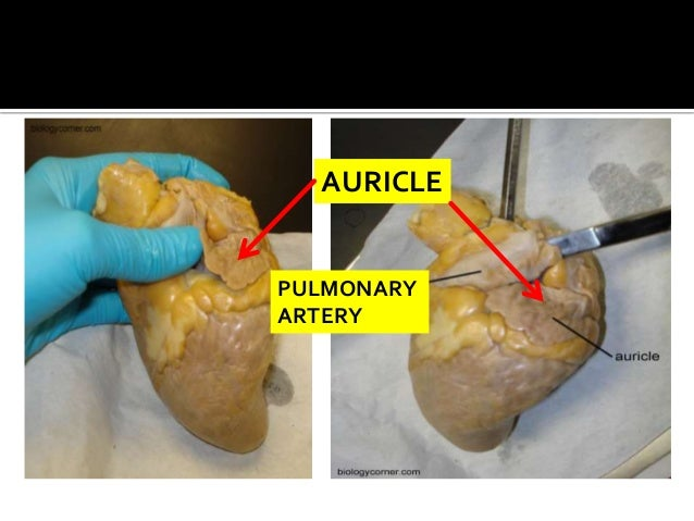 auricle pulmonary artery