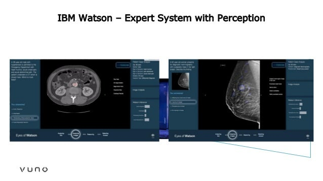 IBM Watson – Expert System with Perception