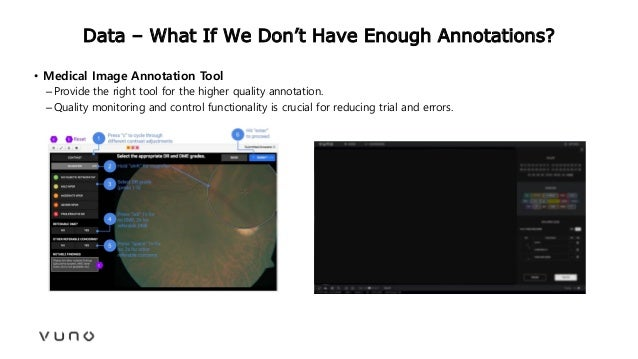 Data – What If We Don't Have Enough Annotations? • Medical Image Annotation Tool –Provide the right tool for the higher qu...