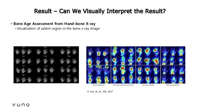 Result – Can We Visually Interpret the Result? • Bone Age Assessment from Hand-bone X-ray –Visualization of salient region...