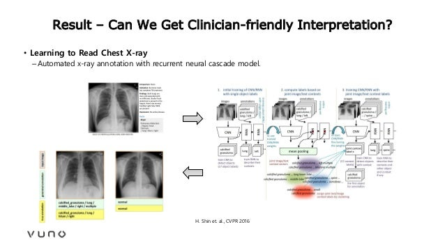 Result – Can We Get Clinician-friendly Interpretation? • Learning to Read Chest X-ray –Automated x-ray annotation with rec...