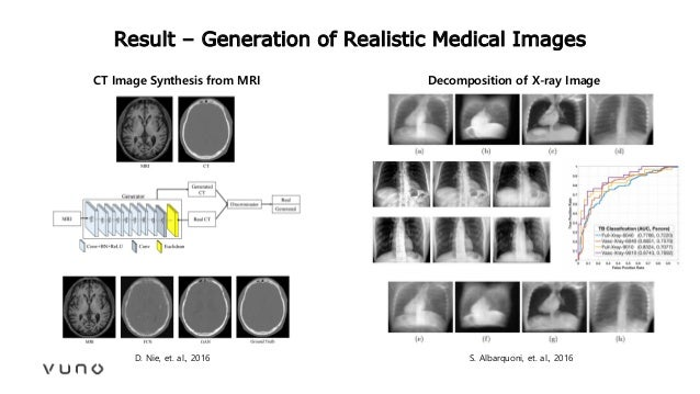 Result – Generation of Realistic Medical Images D. Nie, et. al., 2016 CT Image Synthesis from MRI Decomposition of X-ray I...