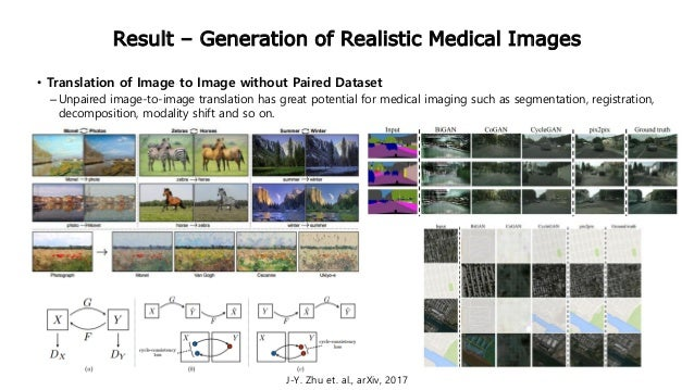 Result – Generation of Realistic Medical Images • Translation of Image to Image without Paired Dataset –Unpaired image-to-...