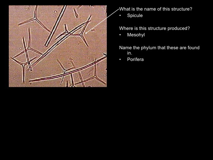 <ul><li>What is the name of this structure? </li></ul><ul><li>Spicule </li></ul><ul><li>Where is this structure produced? ...