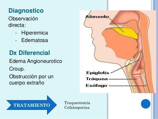 Laringofaringe Y orofaringe