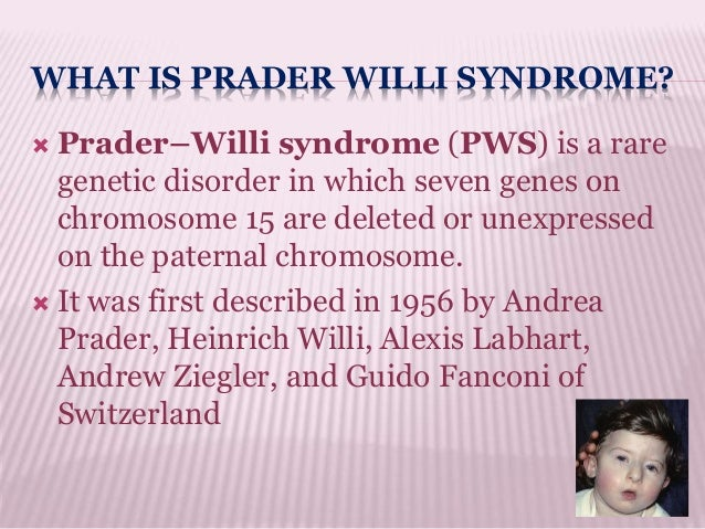 prader willi syndrome Prader-willi syndrome is a non curable disease, proper diagnosis and early commencement of treatment is beneficial for improving the quality of life of the individual.